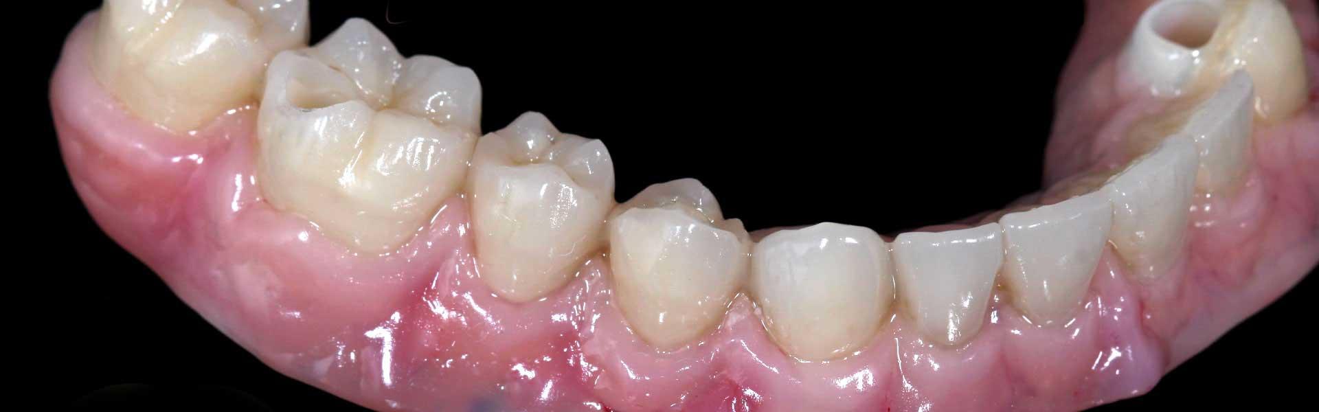 Produits : prothèses et appareils dentaires